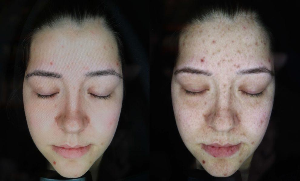 Beauty Facial