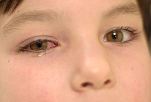 Pink eye image - credit webmd